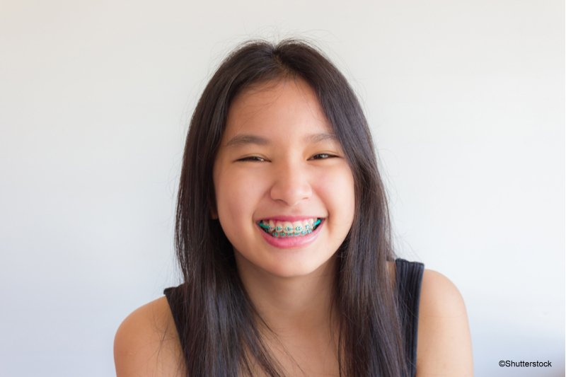 How to Use Orthodontic Wax to Protect Your Smile | Corsa ...